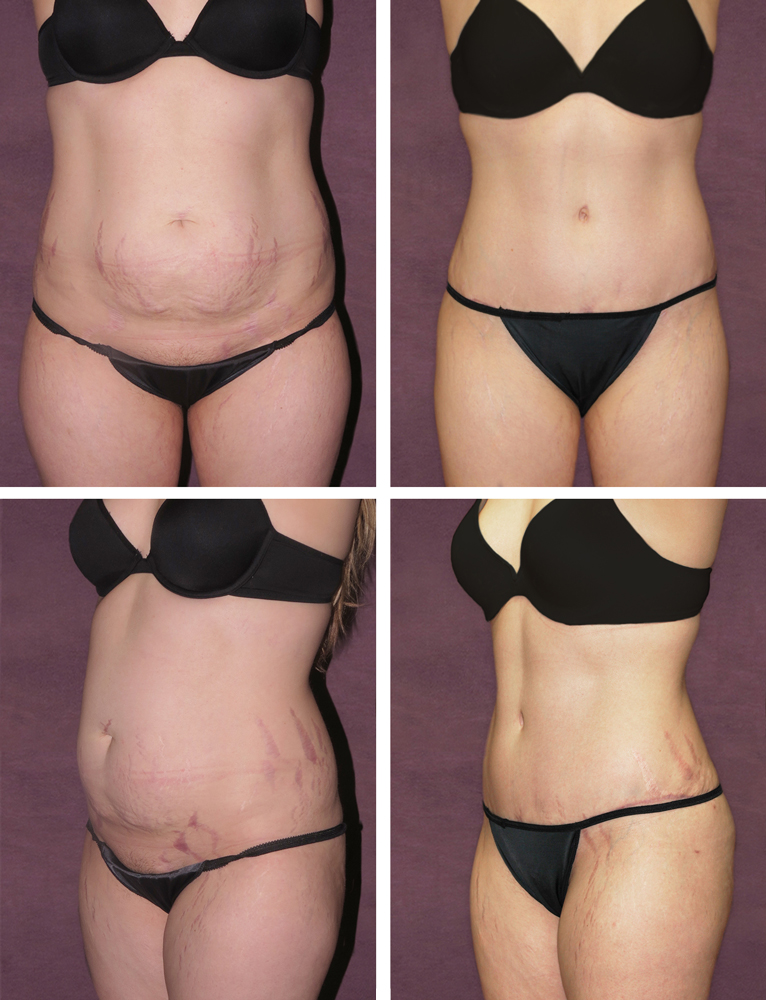 Dr Patronella Often Is Able To Eliminate Or Diminish The Appearance Of Stretch Marks For
