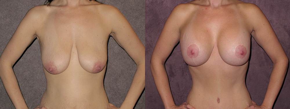 Combined breast lift with breast augmentation