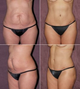 """Prior to having a True Form Tuck with Dr. Patronella, this mother of 2 was self-conscious about the appearance of her abdomen, which she described as looking like """"front buttocks.""""  This was caused by the C-section adhering to the tissues beneath it, making the loose skin surrounding appear more prominent. Dr. Patronella removed her C-Section scar and loose skin, resculpting her abdomen to give it a sexy, smooth, softly contoured appearance."""
