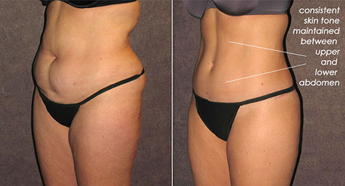 True form tummy tuck houston tx dr christopher patronella any laxity of the upper part of the abdomen can be eliminated comparable with reduction of the lower abdominal skin and fat to achieve consistent ccuart Images