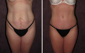 True Form Tummy Tuck Patient of Dr. Patronella
