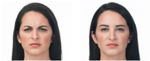 Botox Cosmetic Before and After