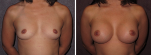 Breast Aug by Dr. Patronella