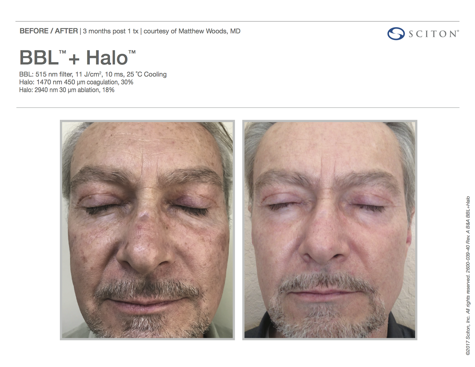 BBL™ + Halo™ Patient Before & After
