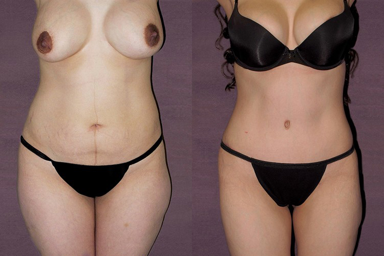Before and after of body lift