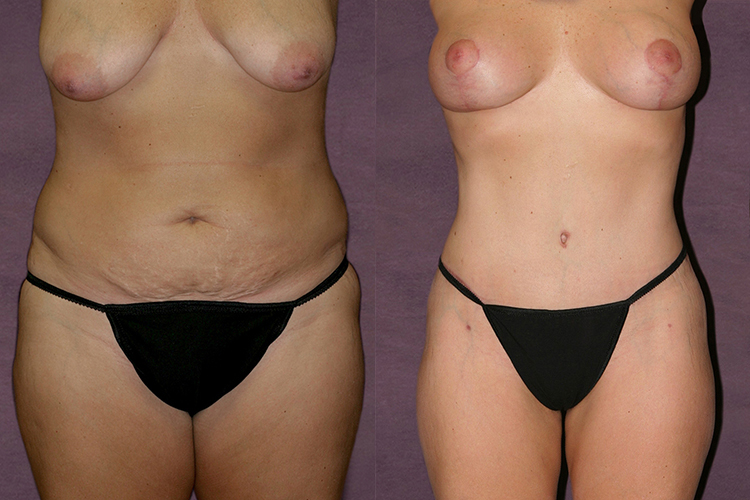 Before and after of thigh lift