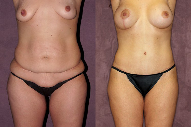 Before and after of tummy tuck