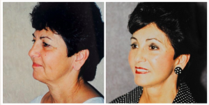 Facelift Patient who also had newlift, browlift and eyelid surgery by Dr. Patronella