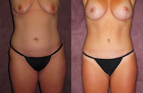 True Form Tummy Tuck Patient by Dr. Patronella