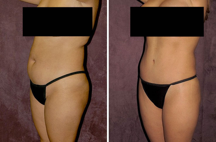 Before and after: muscle tightening