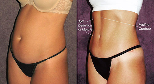Before and after of abdominal contouring