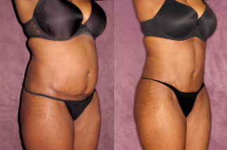 Patronella True From Tummy Tuck before and after case