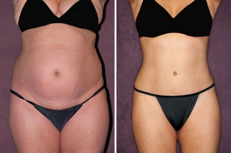 Before and after of waist contouring