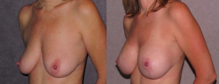 Combined Breast Augmentation by Dr Patronella