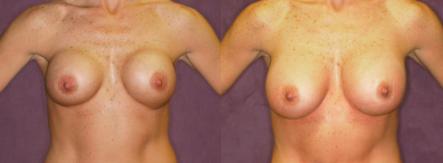 Patronella_Breast_Revision_Results