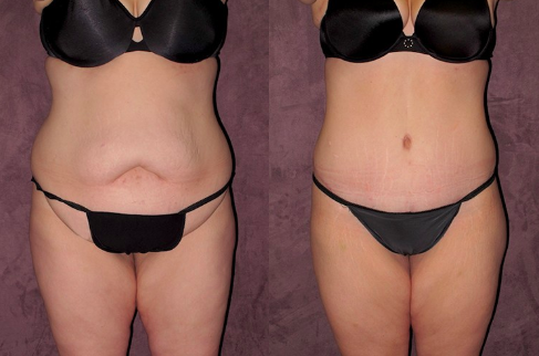 Patronella_Weight_Loss_Patient_Photos