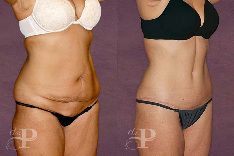 Before and after of a body lift procedure