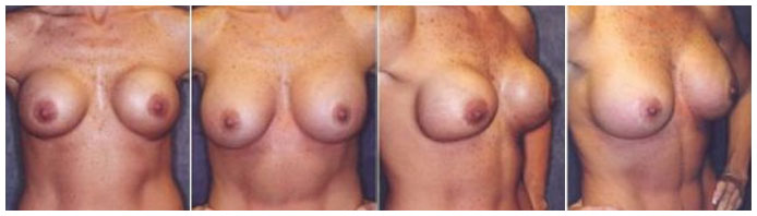 Before and After, Breast Revision