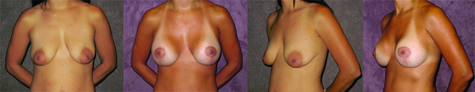 Combined Breast Augmentation and Breast Lift Before and After Photos