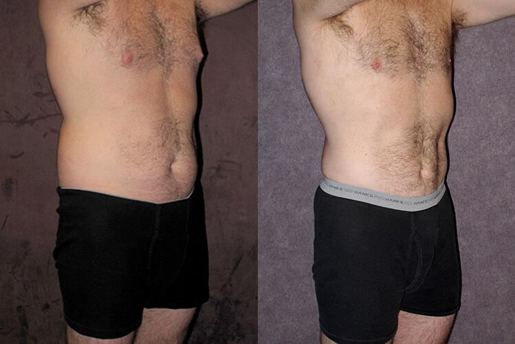 Body Contouring for Men in Houston, TX   Dr  Christopher