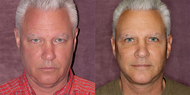 Rejuvenation of Male Face & Neck Before and After Photos