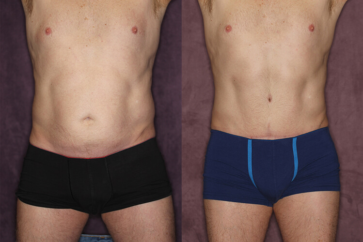 Male Tummy Tuck - Houston, TX | Dr  Christopher Patronella