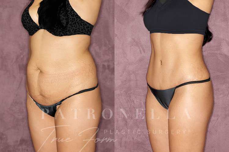 True Form Tummy Tuck Before and After Results Side View by Dr. Patronella