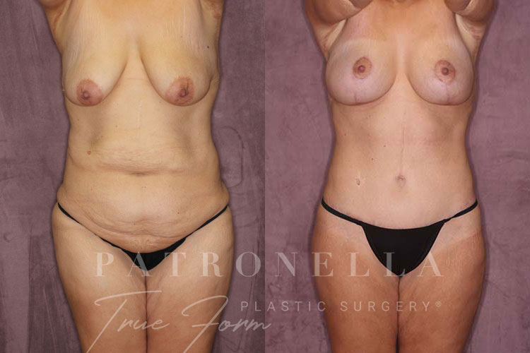 True Form Tummy Tuck Before and After Results by Dr. Patronella