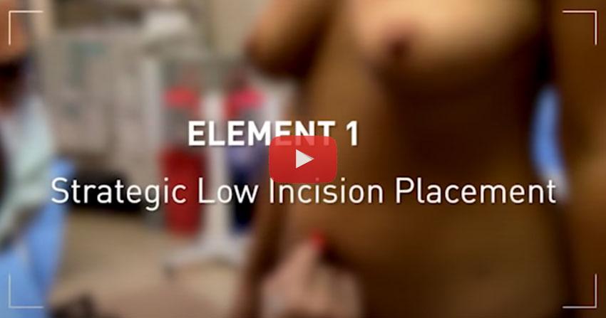 Técnica True Form Tummy Tuck: En Cirugía
