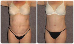 Patronella-True-Form-Tummy-Tuck-Patient-300x180