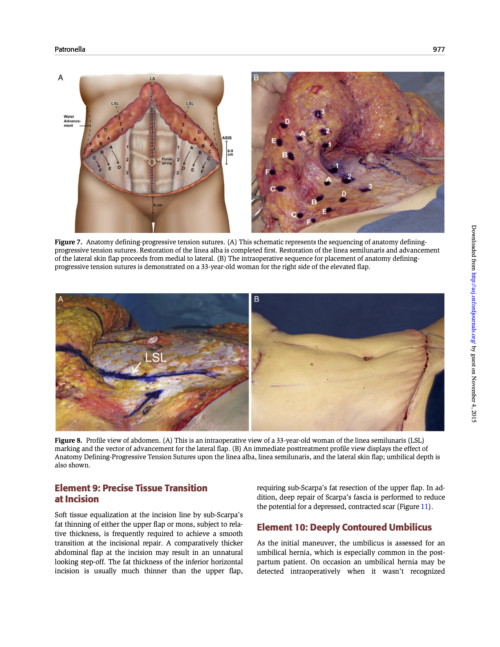 """""""Redefining Abdominal Anatomy: 10 Key Elements for Restoring Form in Abdominoplasty"""" 