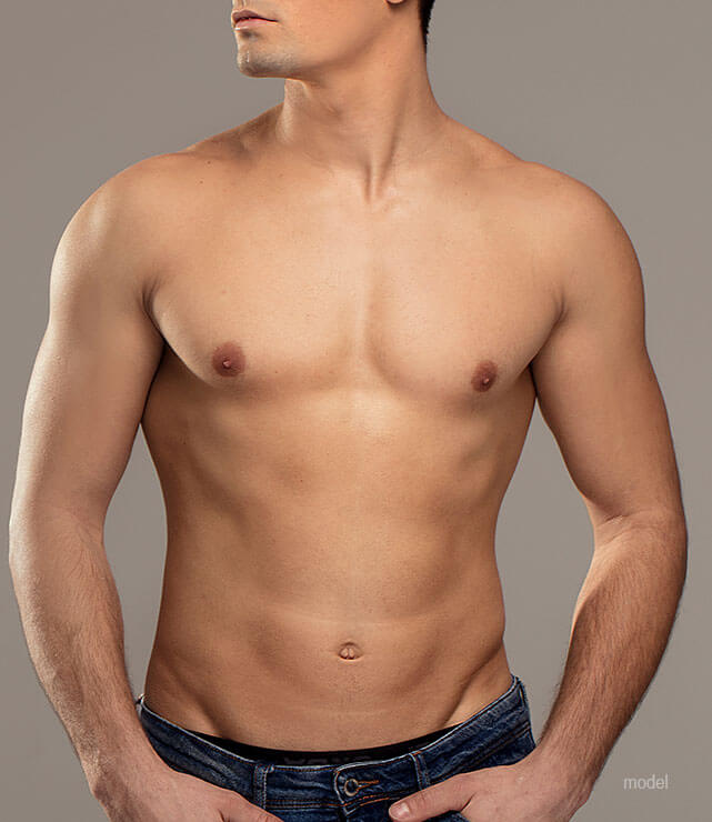 Gynecomastia Surgery (Male Breast Reduction)
