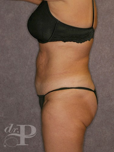 Tummy Tuck Revision Before Patient